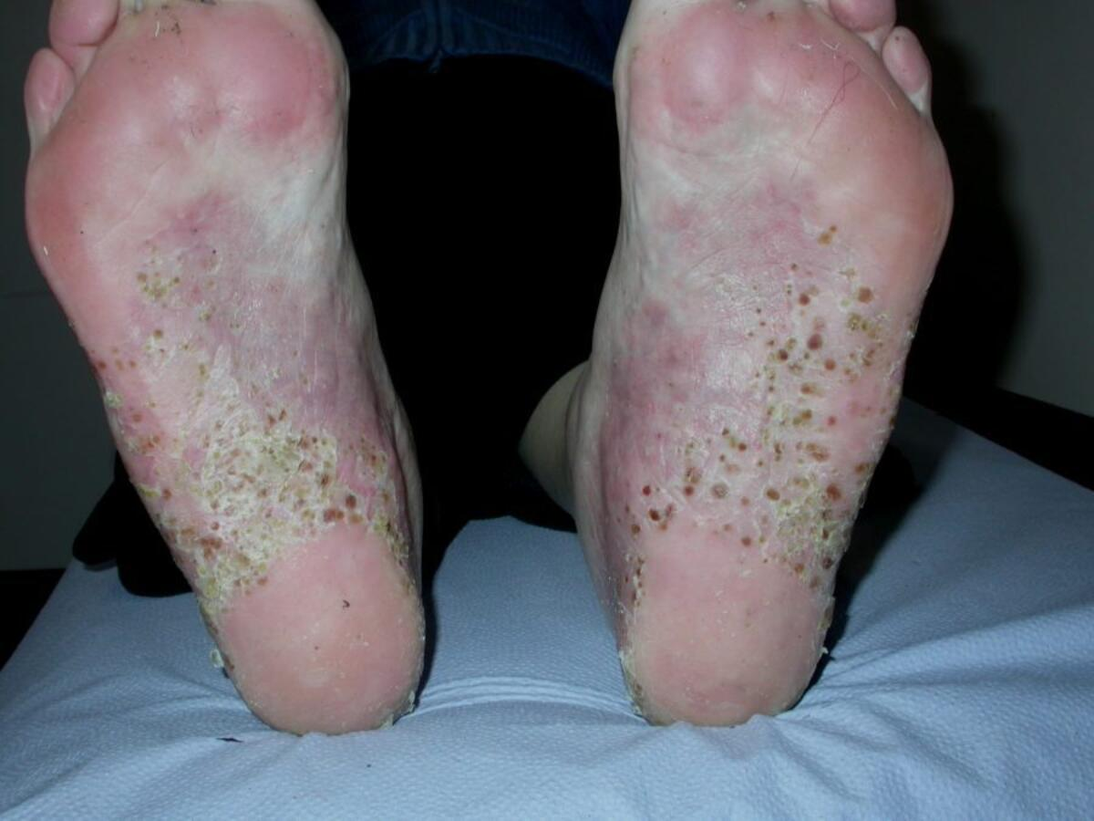 psoriasis documentation psoriasis ointment list in india