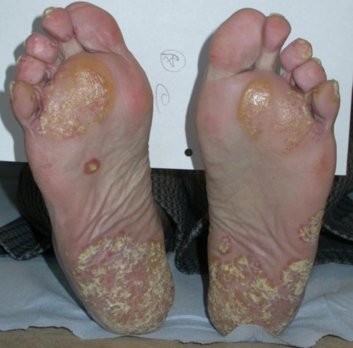 psoriasis on feet and hands pikkelysömör kezelése lazarral