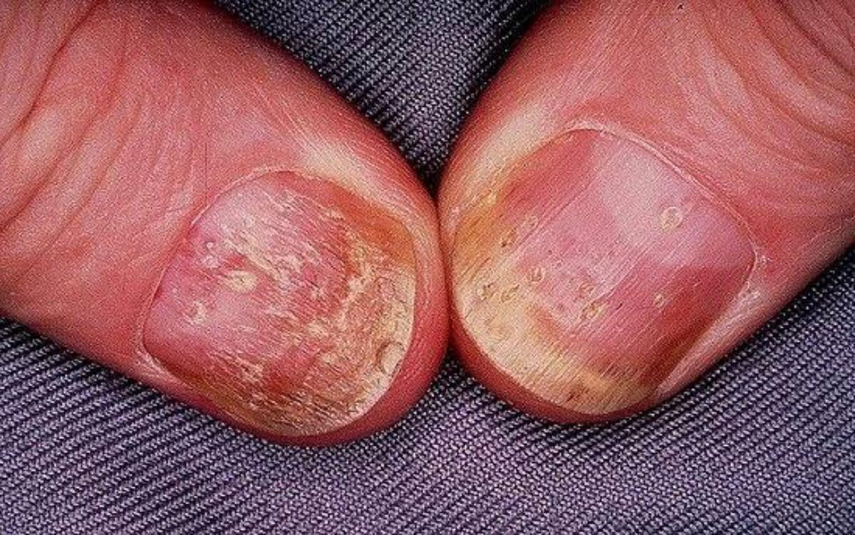 psoriasis early pregnancy symptom vörös foltok az ember testén viszketnek